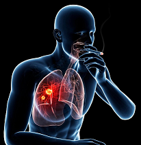 Lung Cancer: What You Need to Know